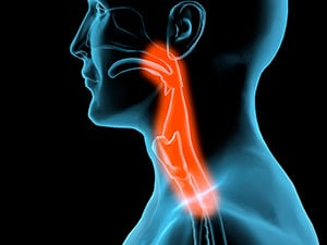 Throat Cancer | Arizona Desert Ear, Nose & Throat Specialists