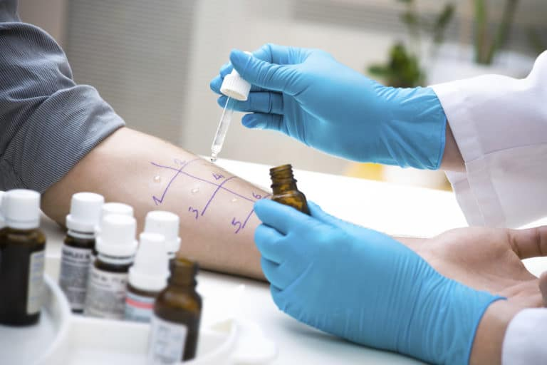 Allergist Doing a Skin Prick Test